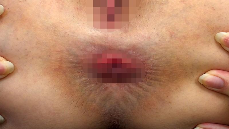 素人娘のアナル図鑑 呼吸をするようにヒクヒクと動く肛門をじっくり観察 おっぴろげアナルコレクション12人 サンプル画像  No.4